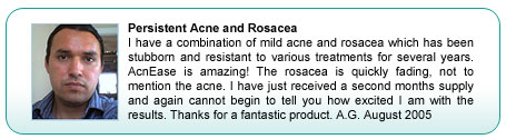 Rosacea treatment testimonial